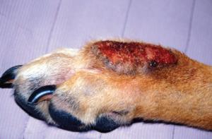 акральный дерматит
